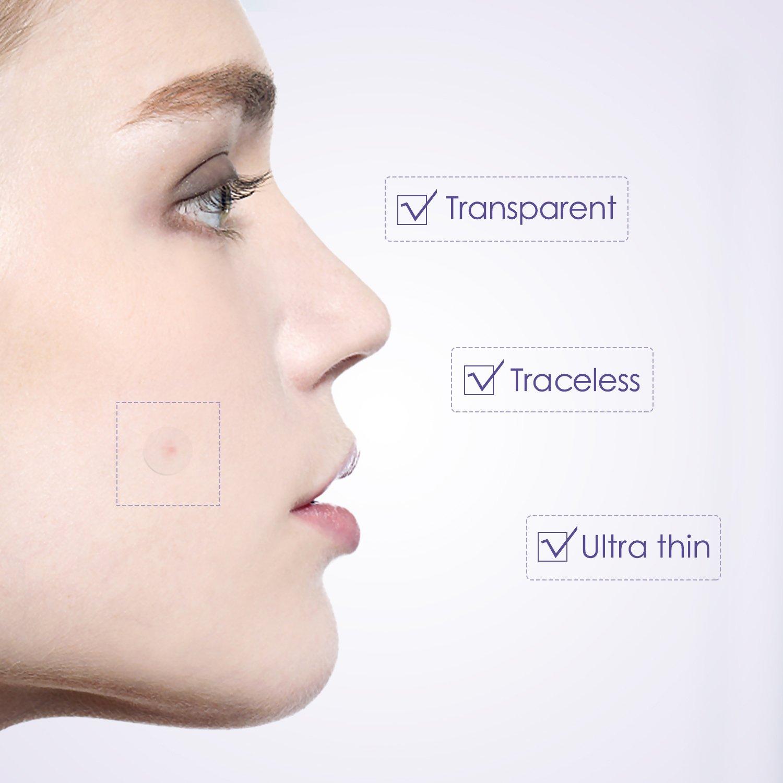 7 Tipps für saubere Haut - ohne Knöpfe